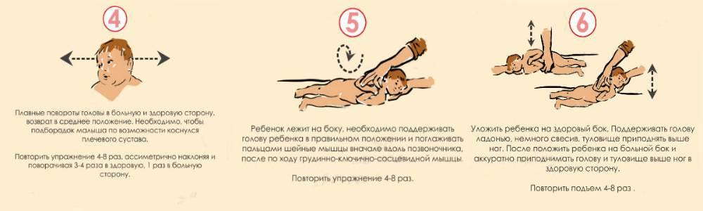 Установочная левосторонняя и правосторонняя кривошея у новорожденных и грудничков