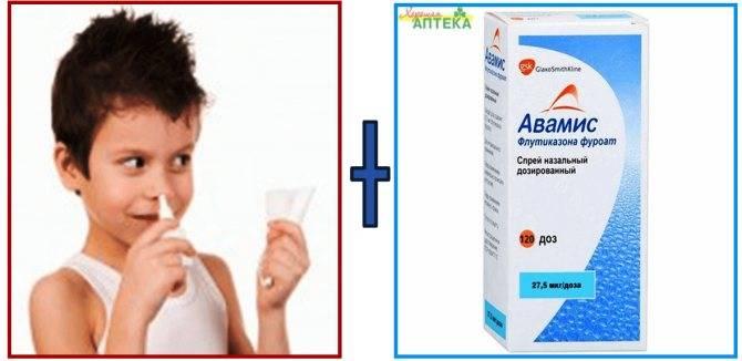 Аденоиды — симптомы, причины и лечение
