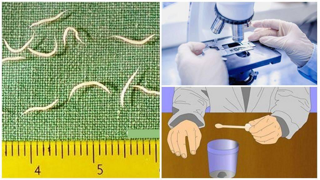 Анализ на яйцеглист ребенку: как и где сдать соскоб, сколько дней делается, фото, видео