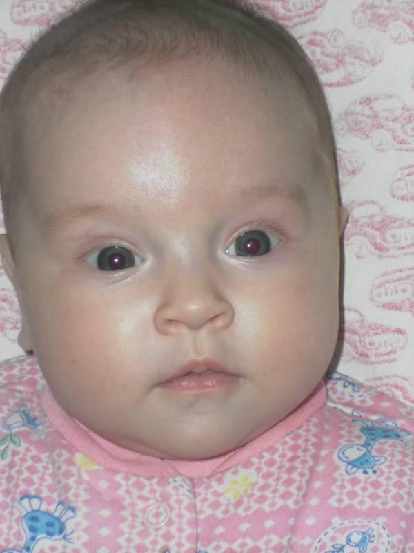 Синие губы у ребенка младше года — возможные причины