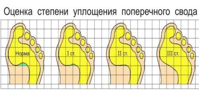 Лечение плоскостопия у детей | компетентно о здоровье на ilive