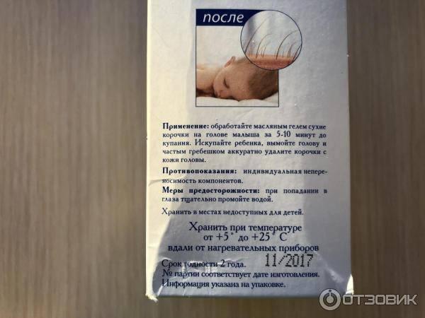 Корочка на голове у младенца | как удалить дома и нужен ли врач