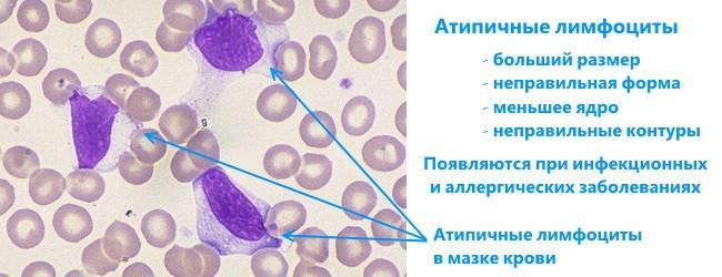 Атипичные мононуклеары : причины появления и морфология   компетентно о здоровье на ilive