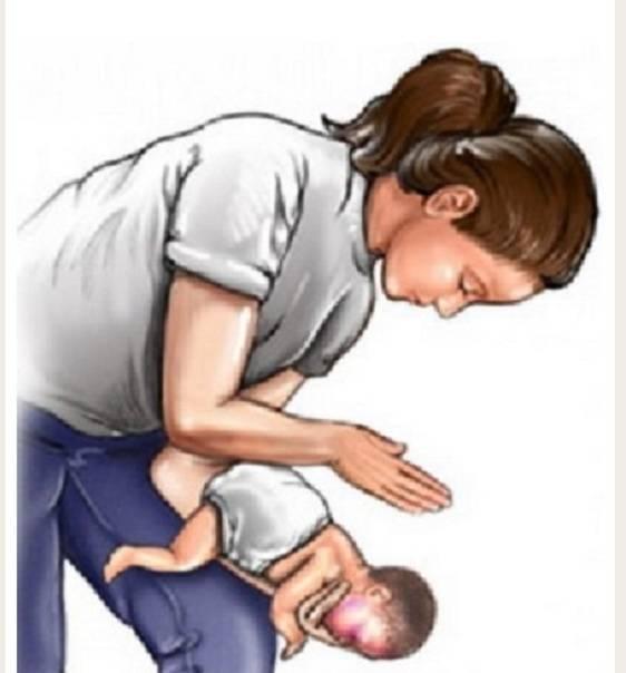 Что делать, если ребенок подавился и как удалить инородное тело