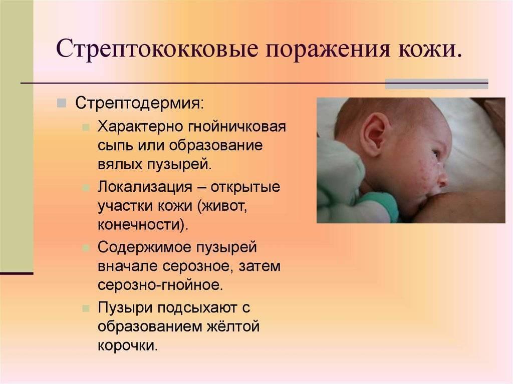 Сыпь на ладонях: причины, лечение, диагностика, сыпь на ладонях у ребенка, беременных, куда обратиться, вызов дерматолога