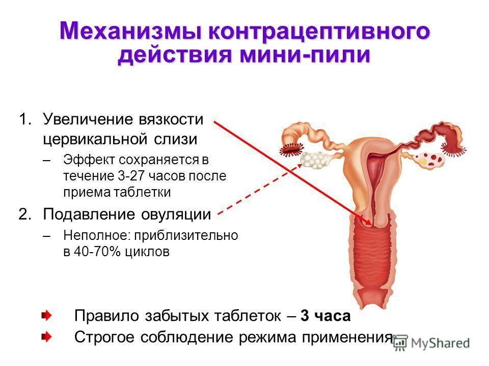 Контрацептивные губки: плюсы и минусы, как использовать, видео