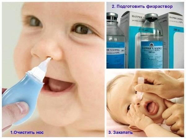 Черный налет пристли на зубах у ребенка