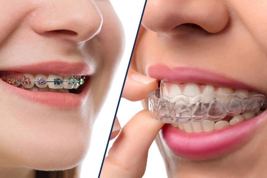 Элайнеры для выравнивания зубов для детей