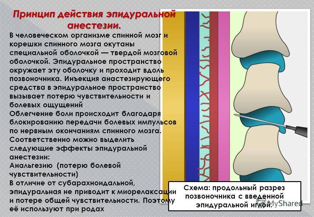 Спинальная анестезия в спину: что это такое? последствия и побочные эффекты после эпидурального наркоза. почему болит спина после спинальной анестезии?