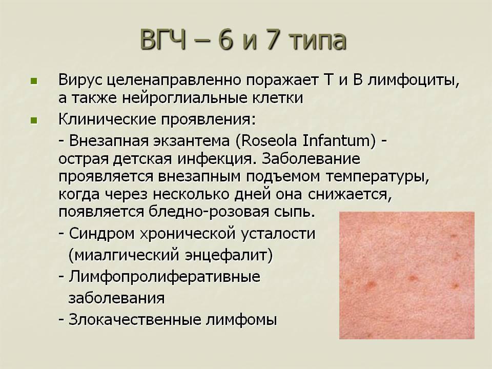 Герпес 6 типа у детей – пути передачи, симптоматика, лечение