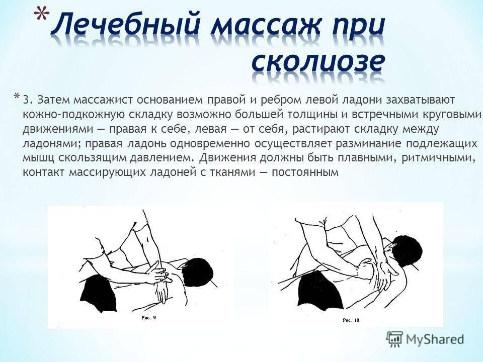Сколиоз позвоночника у взрослых 1-2 степени лечение, диагностика