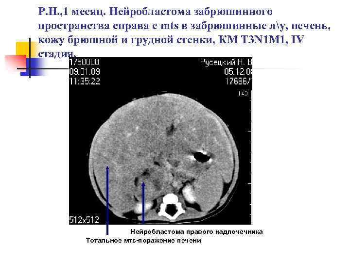 Нейробластома: симптомы у детей, причины, выживаемость, что такое нейробластома забрюшинного пространства - medside.ru