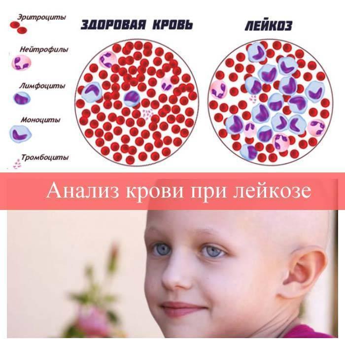 Что такое лейкоз, каковы симптомы и осложнения этого заболевания