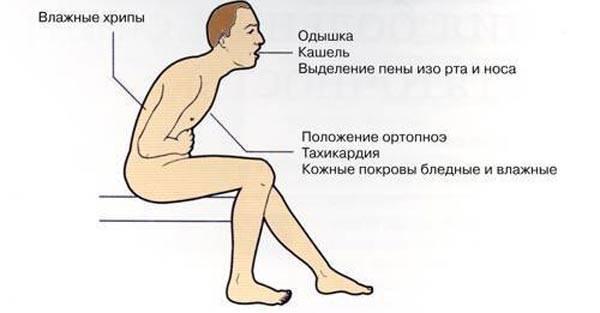 Ростовые боли: главное, чтобы ночью болели обе ноги | милосердие.ru