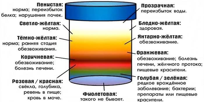 Как по цвету мочи определить болезнь   университетская клиника
