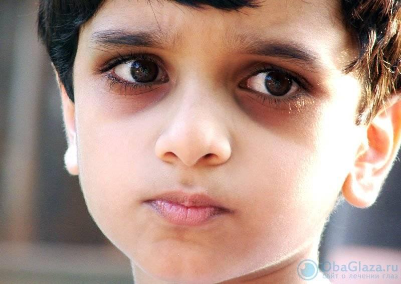 Хронические синяки и темные круги под глазами: как бороться?