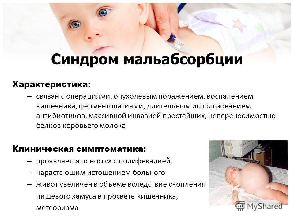 Неврология у новорожденных — симптомы отклонений и расстройств
