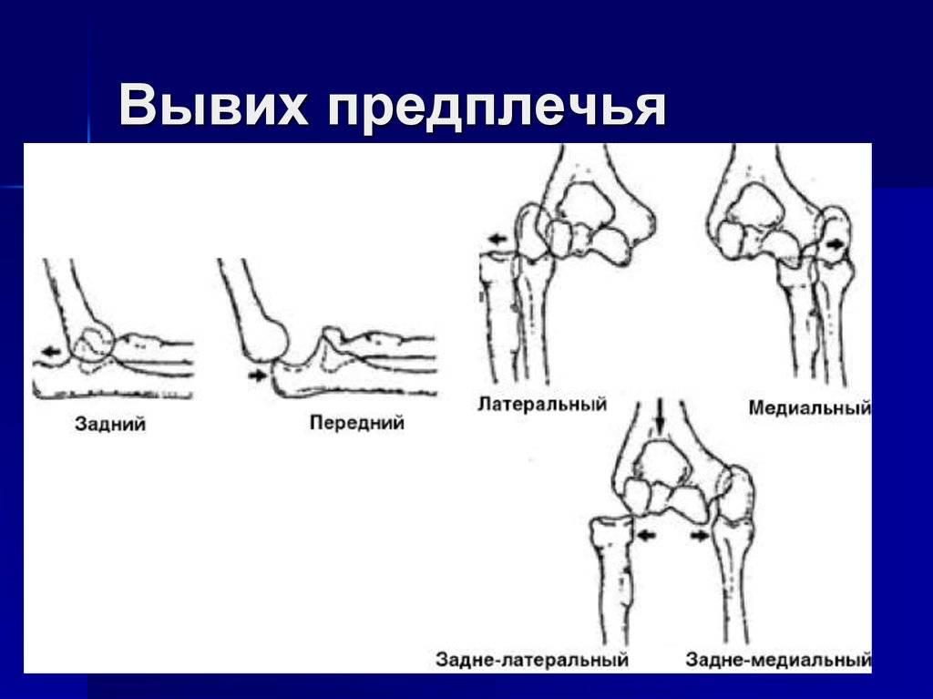 Вывих: причины, симптомы, диагностика, лечение | компетентно о здоровье на ilive