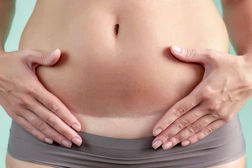 Запор после кесарева сечения: как наладить работу кишечника