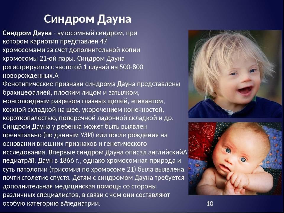 Синдром патау (трисомия по 13 хромосоме) и синдром эдвардса (трисомия по 18 хромосоме). анеуплоидия, трисомия, транслокация, мозаицизм
