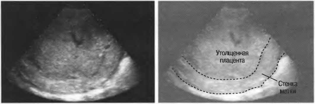 Кариес у беременных: риск развития, влияние на плод, чем опасен и можно ли лечить