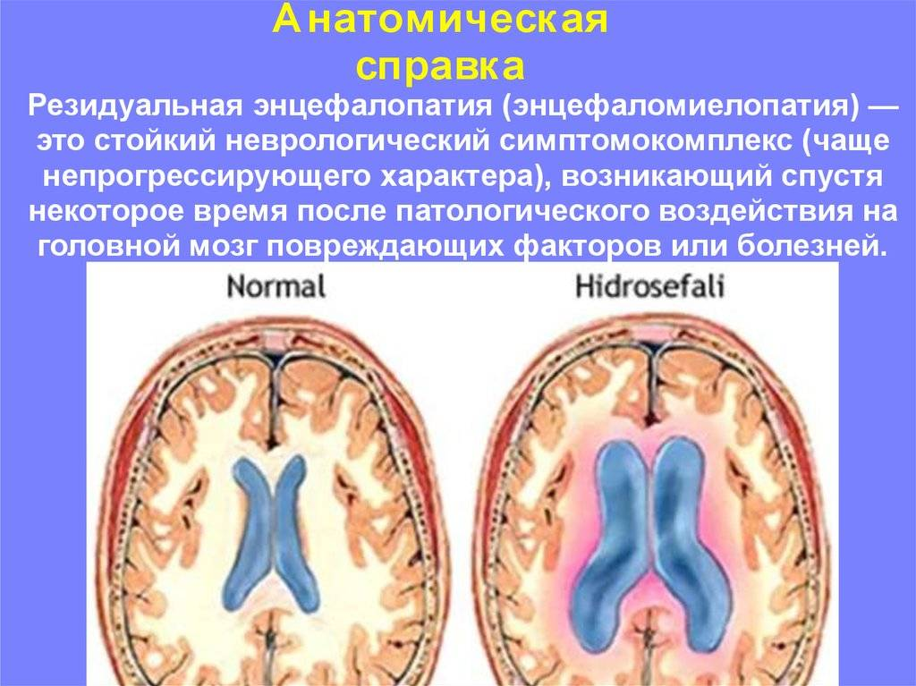 Лечение органического поражения нервной системы