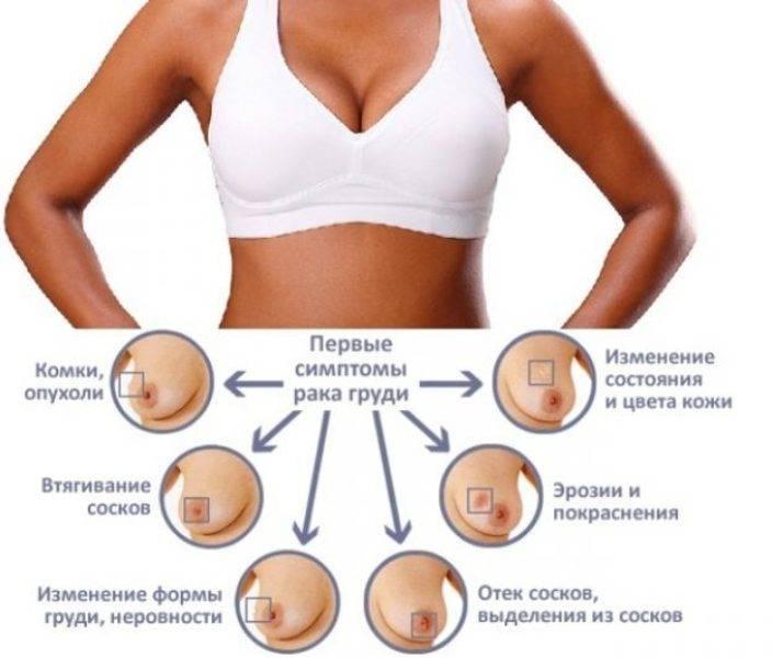 Когда начинает болеть грудь при беременности: когда набухает и как болит грудь, на какой день беременности набухают молочные железы