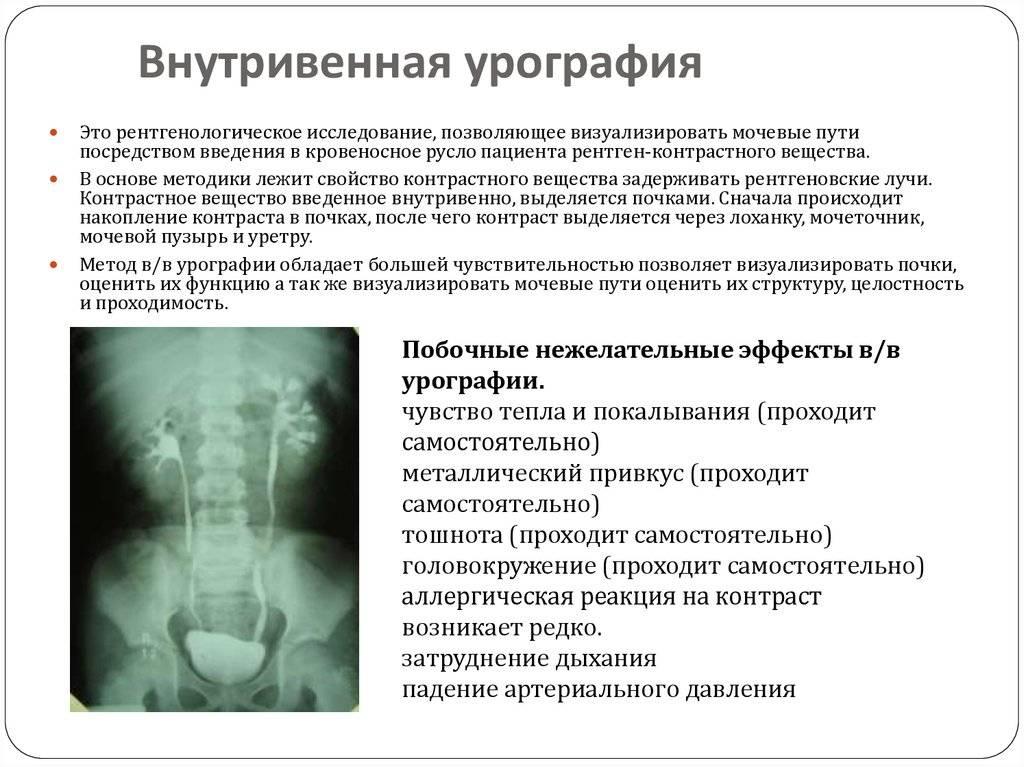 Цистография мочевого пузыря: показания и проведение рентгена мочевого пузыря