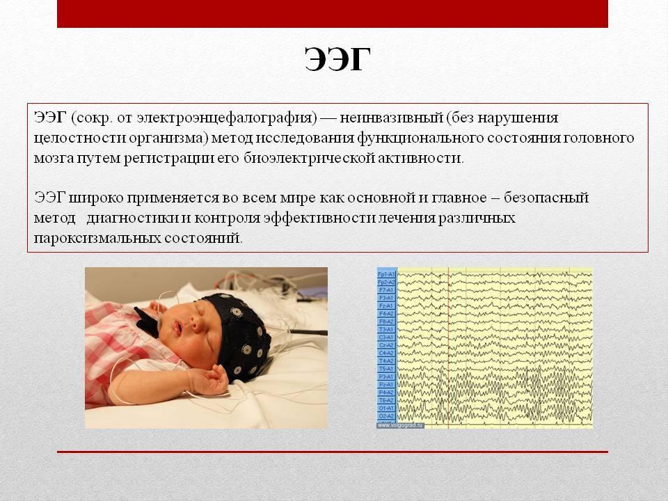 Ээг головного мозга ребенку: что показывает энцефалограмма головы у детей, что это такое