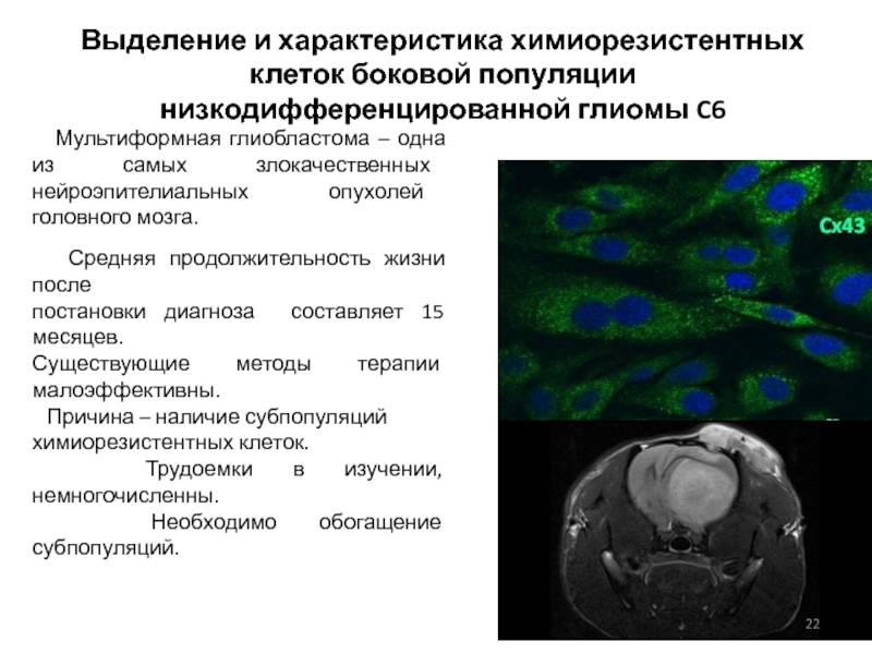 Высокозлокачественные глиомы (краткая информация)