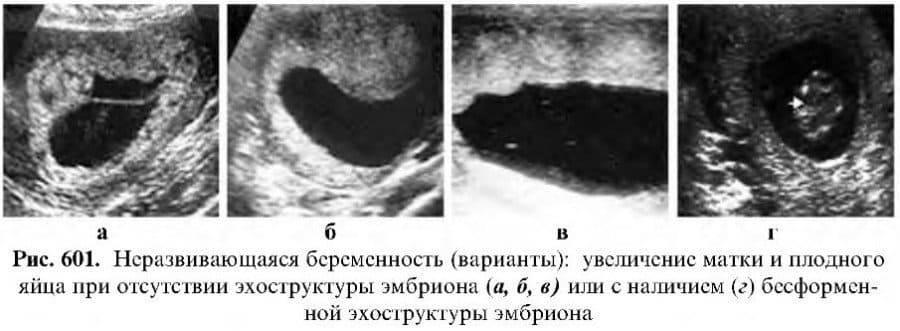 Какие признаки беременности отмечаются после переноса эмбрионов