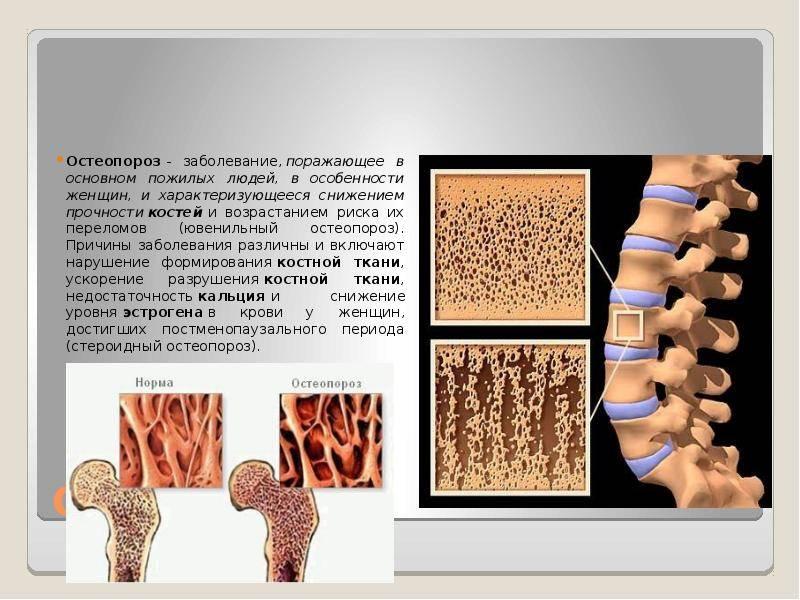 Ювенильный ревматоидный артрит - насколько это серьезно?