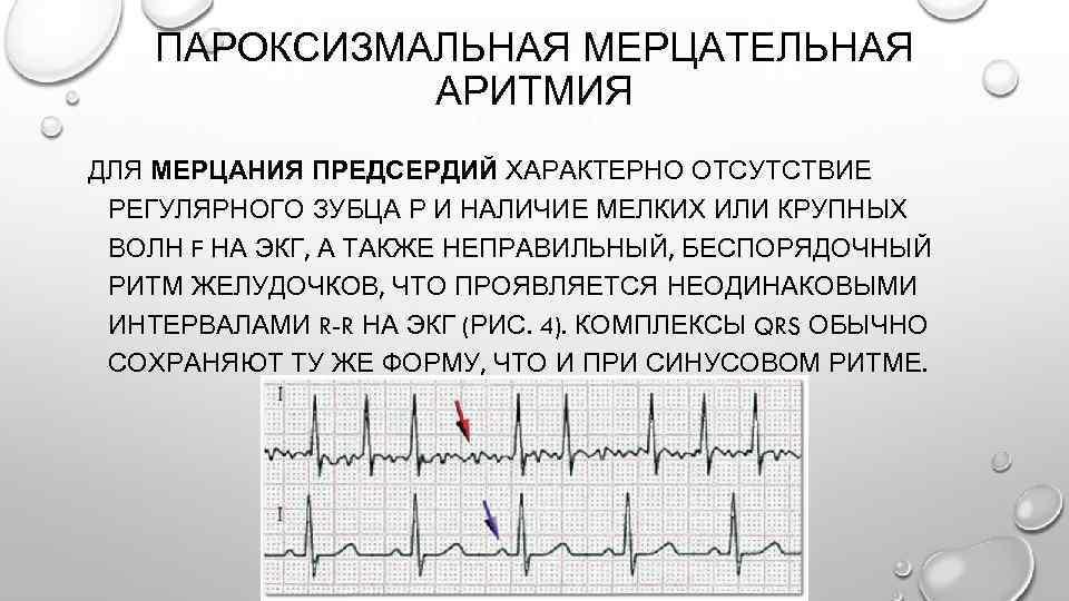 Симптомы заболеваний сердца у подростков. как предотвратить развитие серьезных заболеваний в будущем - причины, диагностика и лечение