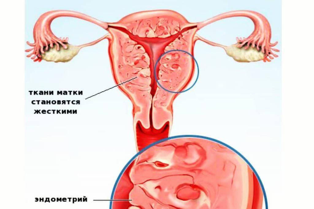 Аденомиоз матки: что это и как лечить - статья репродуктивного центра «за рождение»