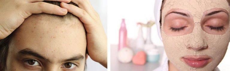 Удаление волос подростку при излишней степени оволосения