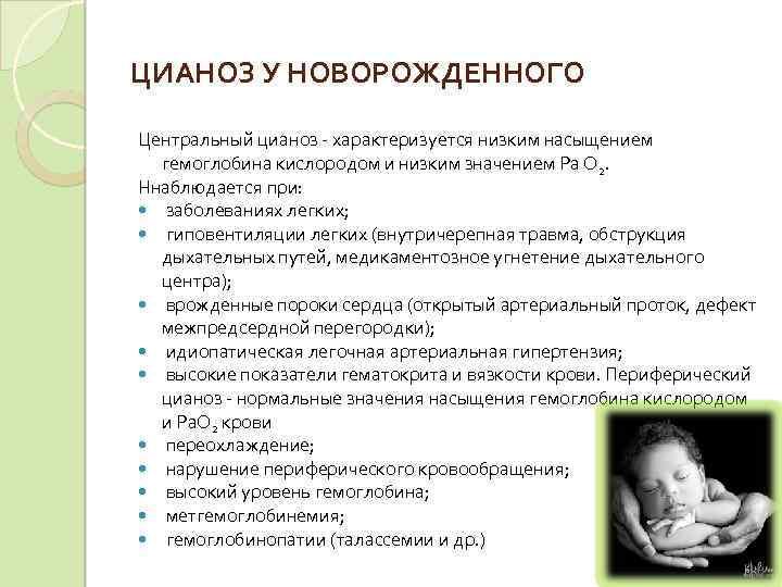 Цианоз кожи у детей