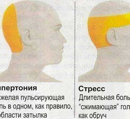 Болит шея при наклоне головы | сеть клиник «здравствуй!»
