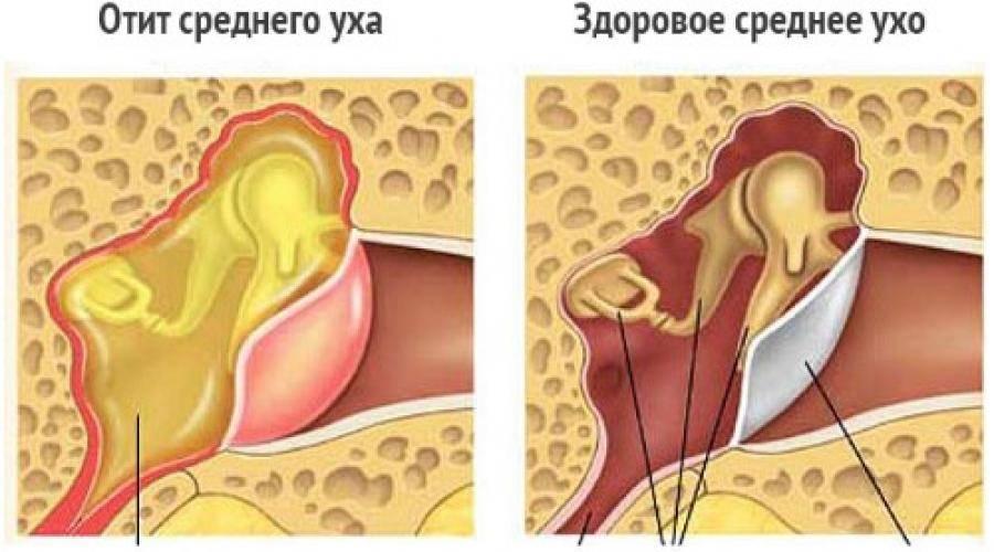 Интерстициальные заболевания легких. причины, симптомы и лечение.!