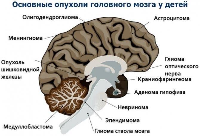 Опухоли головного мозга – причины, виды, симптомы. диагностика и лечение опухолей  мозга.