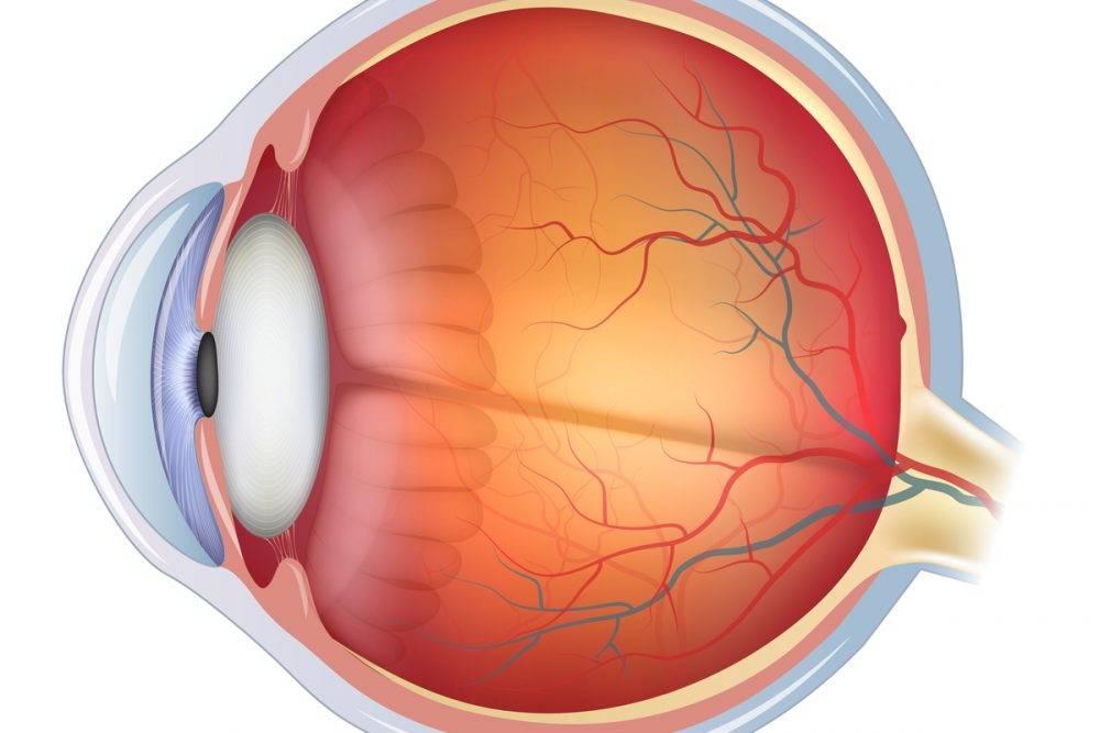 Фоновая (вторичная) ретинопатия