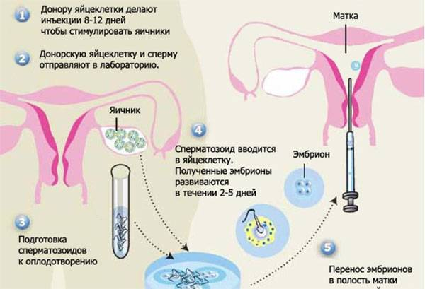 Как происходит пункция яичников при эко