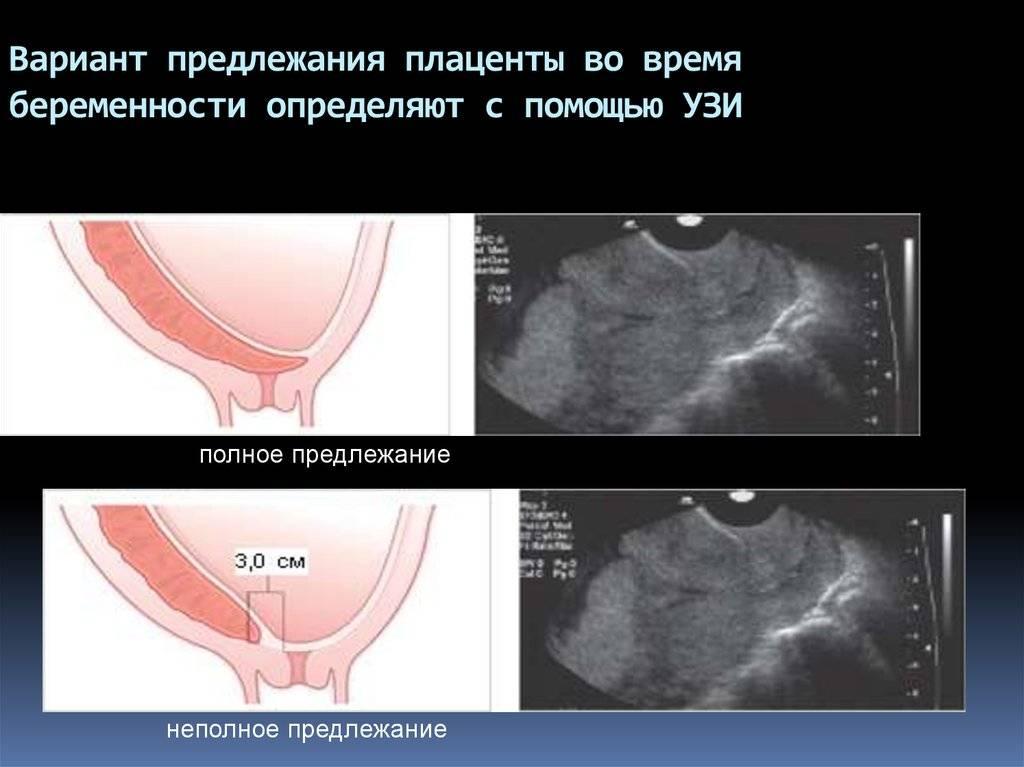 Гипертонус матки при беременности