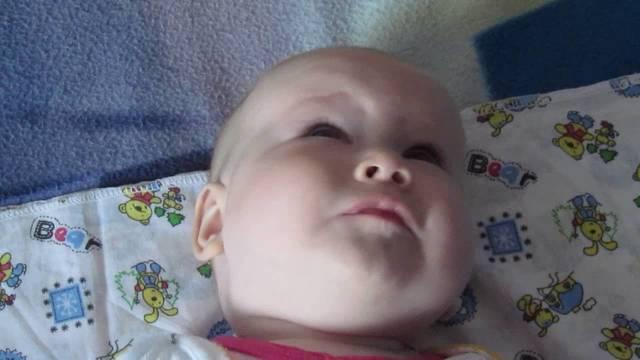 Когда проходит косоглазие у новорожденных, почему косит один или оба глаза у грудничка, что делать?