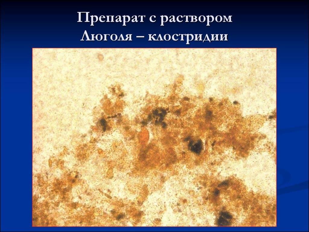 Копрограмма