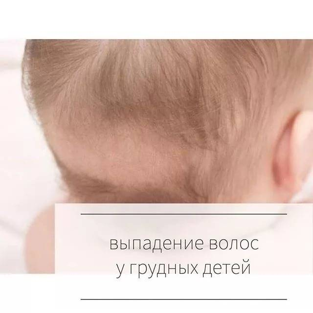 Синдром избыточного оволосения у  детей.