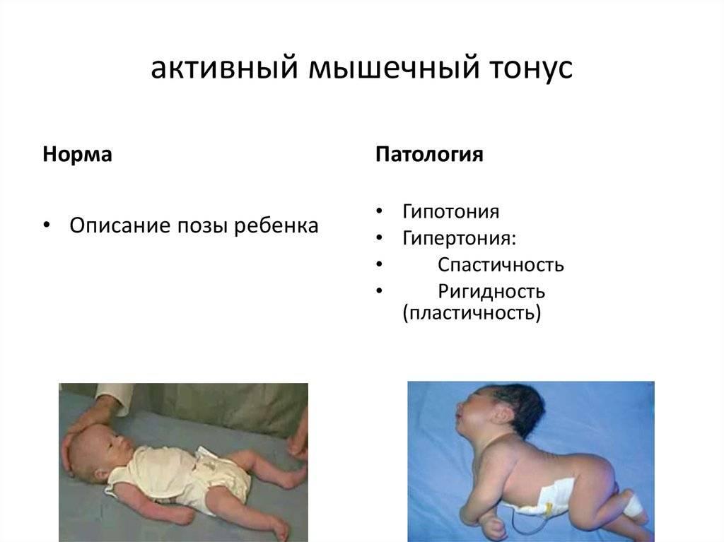 Виды дизартрии: принципы классификации (таблица) и причины развития