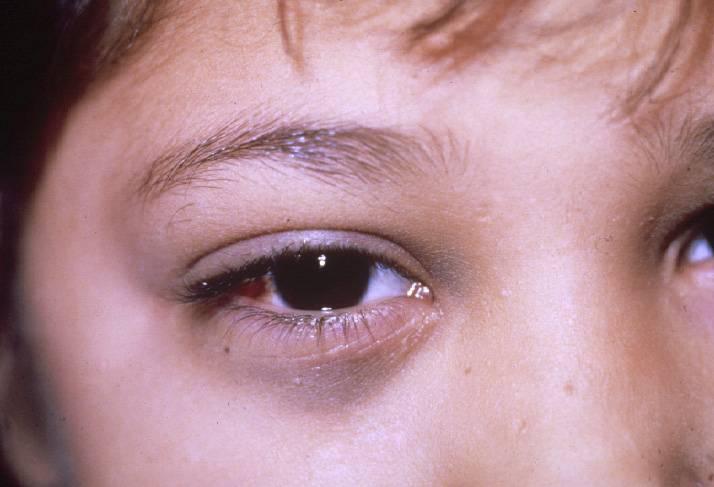 Полинейропатия: симптомы, признаки и причины, диагностика и лечение