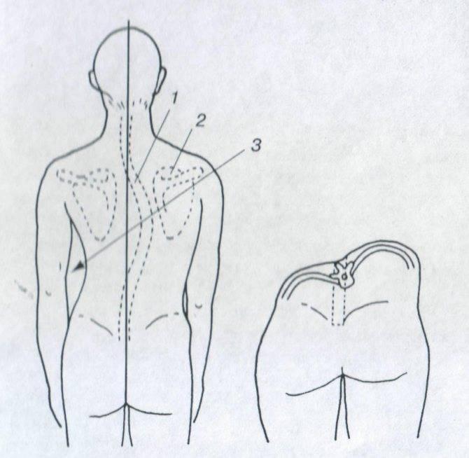 Сколиоз 1–2 степени