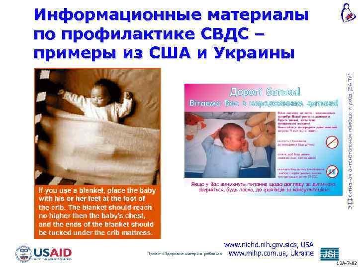 » синдром внезапной детской смерти (свдс)