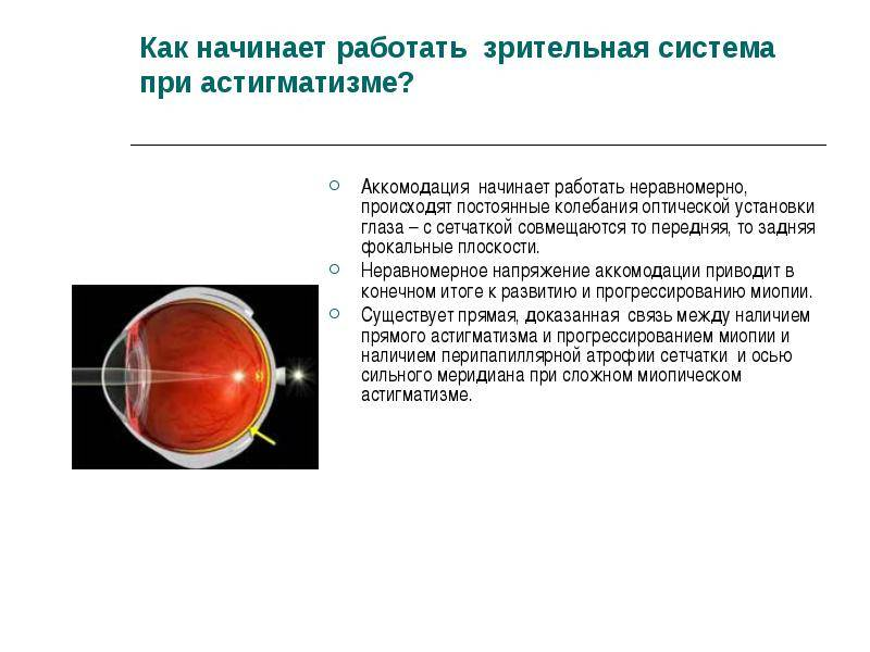 Что такое смешанный астигматизм глаз? методы лечения заболевания